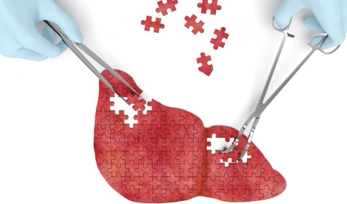 افزایش ترشح آنزیم های کبدی نشانه چیست؟